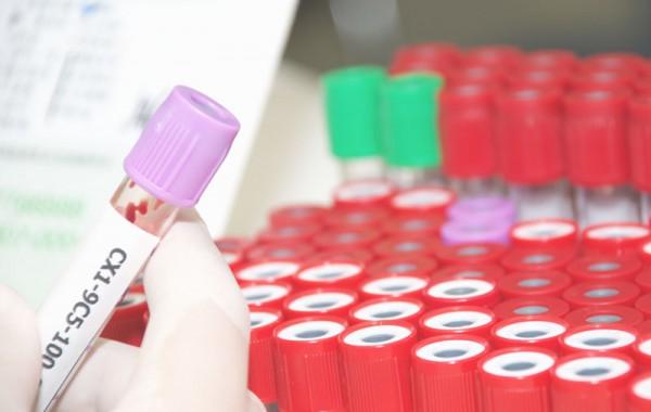 Hepatitis C Resources